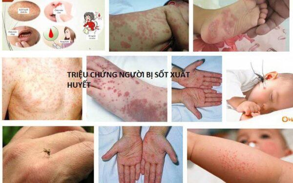 Bạn đã hiểu gì về bệnh sốt xuất huyết