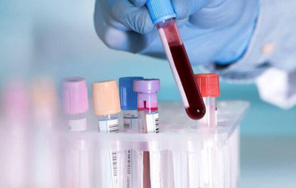 Quy trình xét nghiệm xác định nhóm máu hệ ABO, Rh