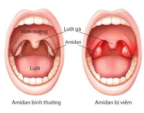 Bệnh học viêm amidan