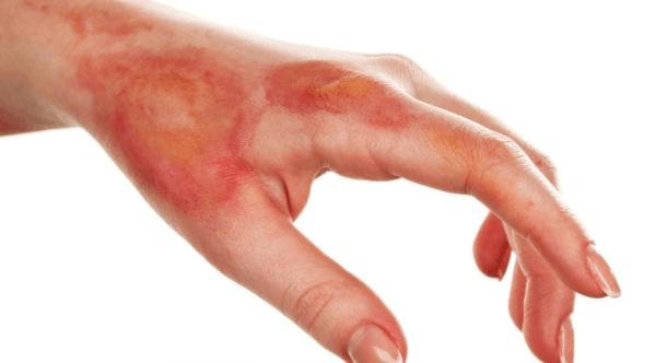 Dấu hiệu triệu chứng lâm sàng sốc bỏng