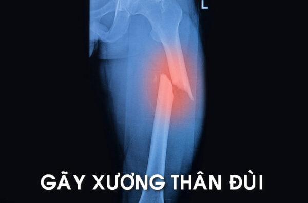 Gẫy thân xương đùi