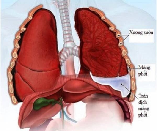 Điều dưỡng chăm sóc bệnh nhân tràn dịch màng phổi