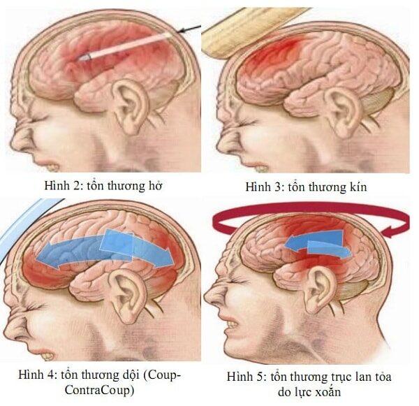 Bệnh học ngoại chấn thương sọ não kín