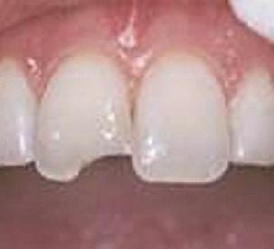 Chấn thương răng