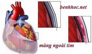 Bệnh học viêm màng ngoài tim