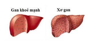 Những bài thuốc dân gian trị bệnh xơ gan sỏi mật và đau bao tử