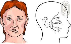 Liệt mặt nguyên phát (đông y)