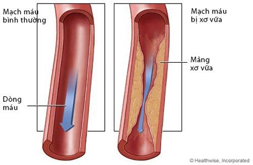 Bệnh học xơ vữa động mạch