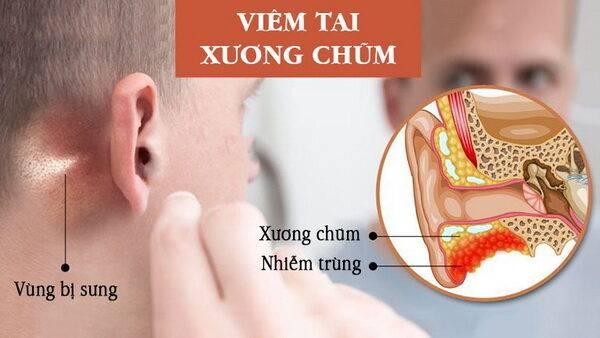 Đối phó với bệnh viêm tai hay gặp ở trẻ nhỏ