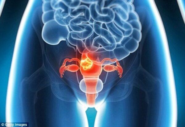 Hiểu và phòng tránh Ung thư cổ tử cung