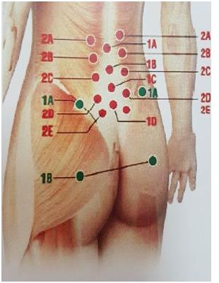 Điều trị đau thần kinh tọa do thoát vị đĩa đệm bằng tiêm Collagen