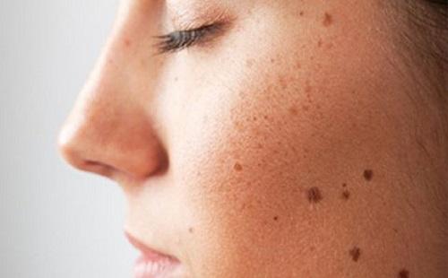 Lo lắng nguy cơ ung thư da trong mùa nắng nóng đến gần